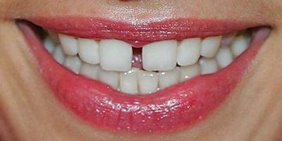Щели между зубами и детская стоматология