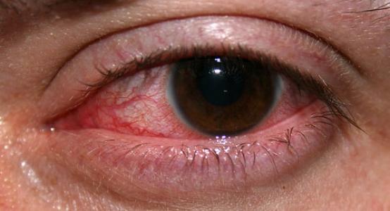 Что делать, если глаза пострадали от сварки?