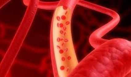 Недостаточность кровообращения