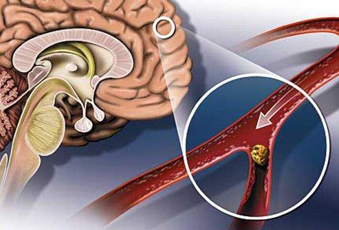 Предотвращение инсульта и роль магнитотерапии