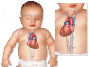 Пороки развития сердца: декстрокардия