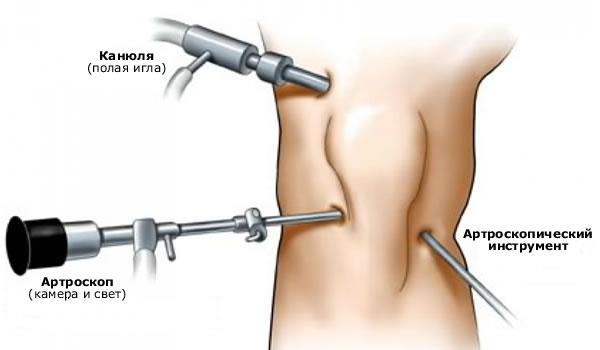 Артроскопия коленного сустава