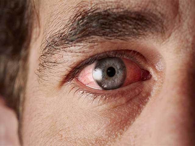 Главные причины заболевания глаз