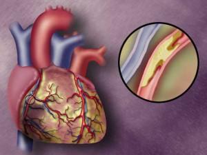 Воспаления защищают сердце и сосуды