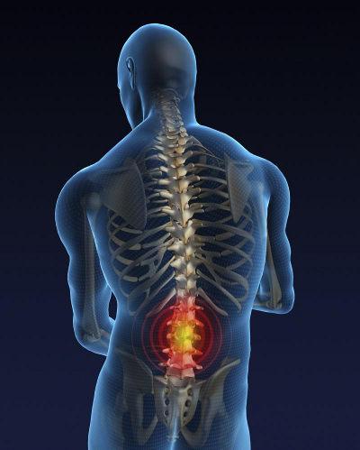 Что такое остеохондроз, и каким он может быть?
