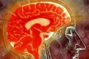 Причины появления умеренно выраженной наружной гидроцефалии