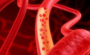 10 факторов, которые вызывают тромбоз после родов