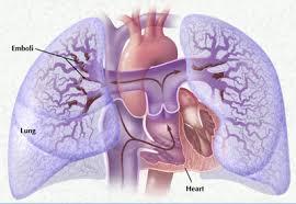 Симптомы тромбоэмболии легочной артерии. Методы ее лечения и терапии