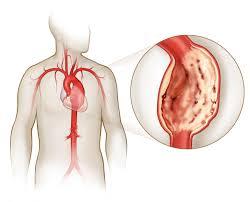 Чем опасен разрыв аорты? Причины и симптомы заболевания