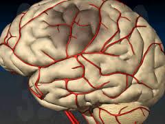 Церебральные инсульты