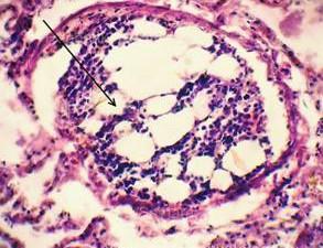 Склероз легочных сосудов