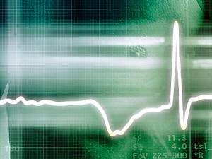 Аритмия — нарушения сердечного ритма