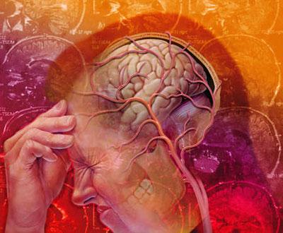 Какие химические процессы происходят в мозгу во время мигрени?