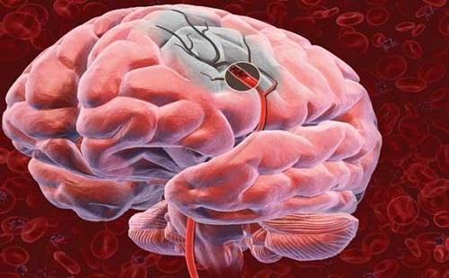 Ученые нашли медикаментозный способ лечения инсульта