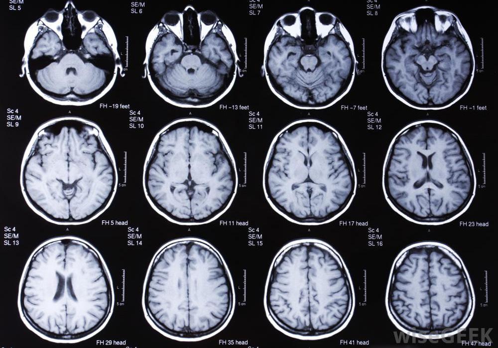 Магнитно-резонансная (МР) диагностика инсульта