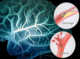 Основные факторы риска развития инсульта