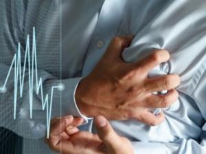 Что такое аритмия сердца?
