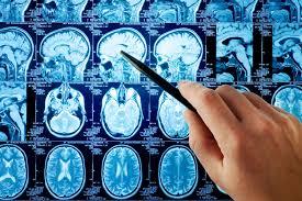 Ультразвуковая диагностика инсульта