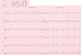 Инфаркт миокарда и сексопатология