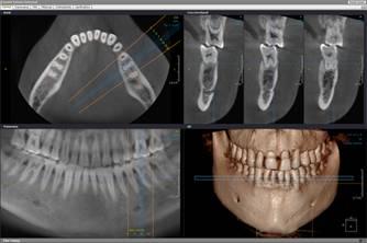 Компьютерная диагностика челюсти и зубов
