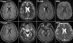Магнитно-резонансное исследование (МРТ) головного мозга