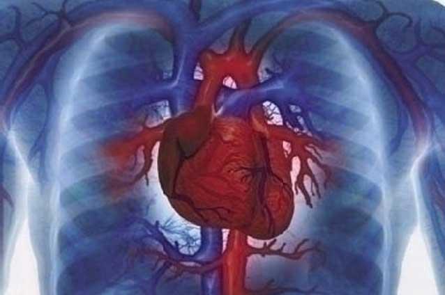 Необычные симптомы сердечно-сосудистых заболеваний