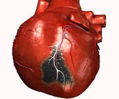 Инфаркт миокарда: лечение