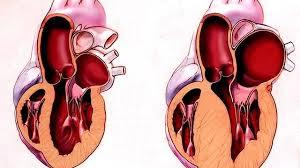 Рестриктивная кардиомиопатия: причины, симптомы, диагностика ...
