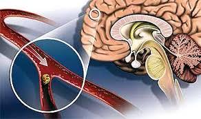 Несколько советов, как избежать риска инсульта у женщин