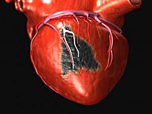 Понятие о предынфарктном состоянии