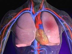 Тромбоэмболии легочной артерии