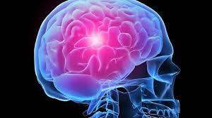 Борьба с инсультом: задумайтесь о своем здоровье