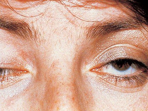 Миастенический синдром