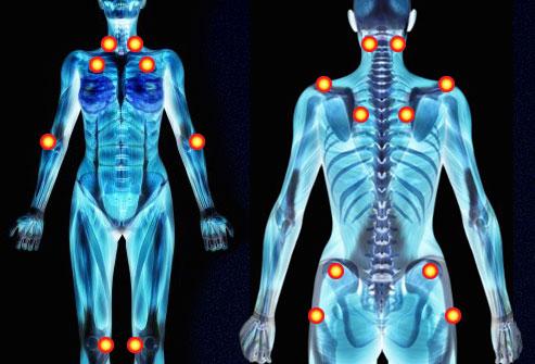 Фибромиалгия: лечение