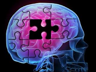 Инсульт — причины, симптомы, диагностика, лечение