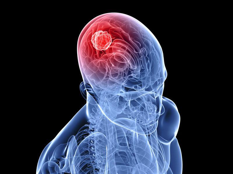Опухоли головного мозга: симптомы, лечение