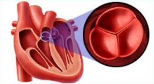 Изолированный стеноз лёгочной артерии: симптомы, диагностика, лечение