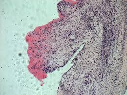 Инфекционный эндокардит: общие сведения