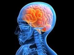 Причины и последствия мозгового кровоизлияния
