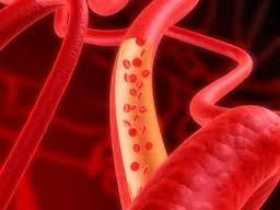 Эпидемиология ожирения, как фактора риска сердечно-сосудистых заболеваний