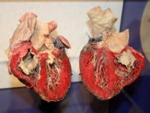 Особенности поражения сердечно-сосудистой системы при эссенциальной артериальной гипертензии