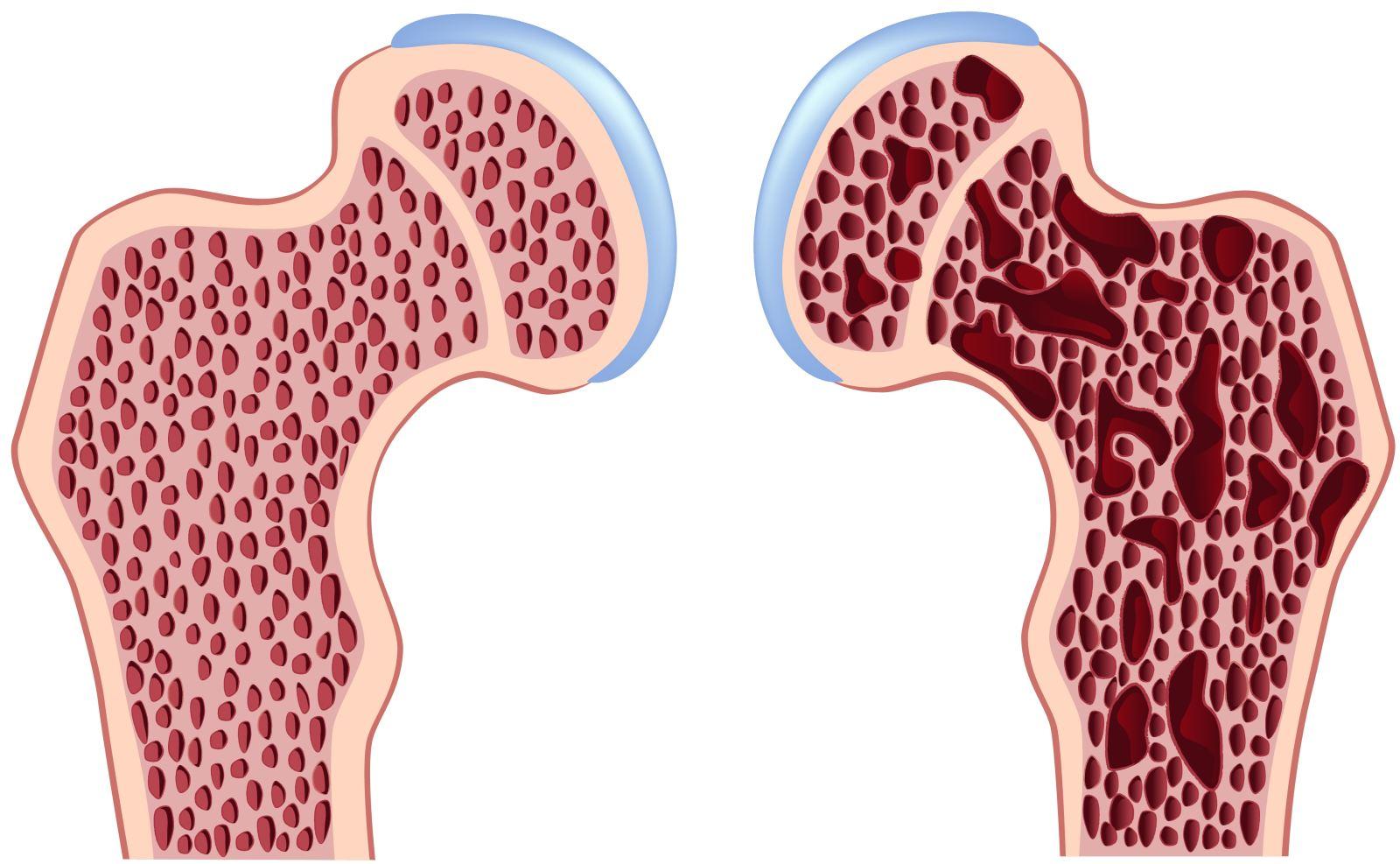 Остеопороз — болезнь «пористых костей»