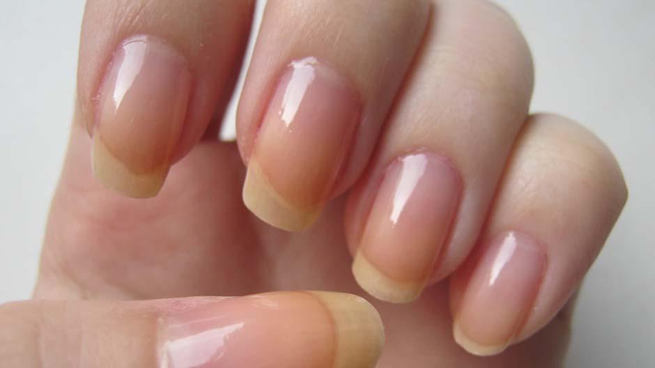Что ногти расскажут о здоровье?