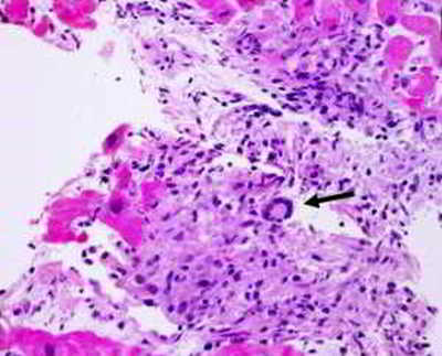 Вирусный миокардит