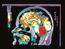 Умные люди обладают определенными особенностями мозга