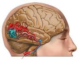 Операции при артериальных аневризмах и артериовенозных мальформаций головного мозга