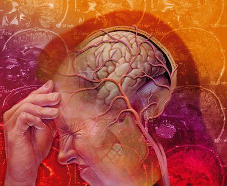 Насилие в детском возрасте может стать причиной мигрени