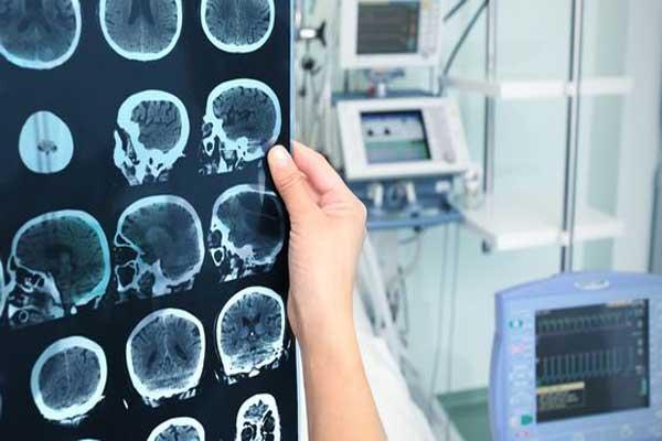 Как уменьшить риск развития инсульта