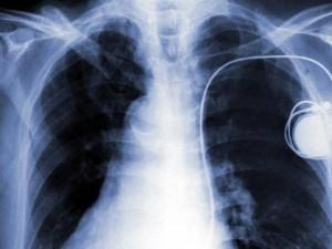 Причины застойной сердечной недостаточности