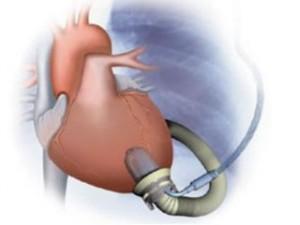 Французская компания начала испытания искусственного сердца